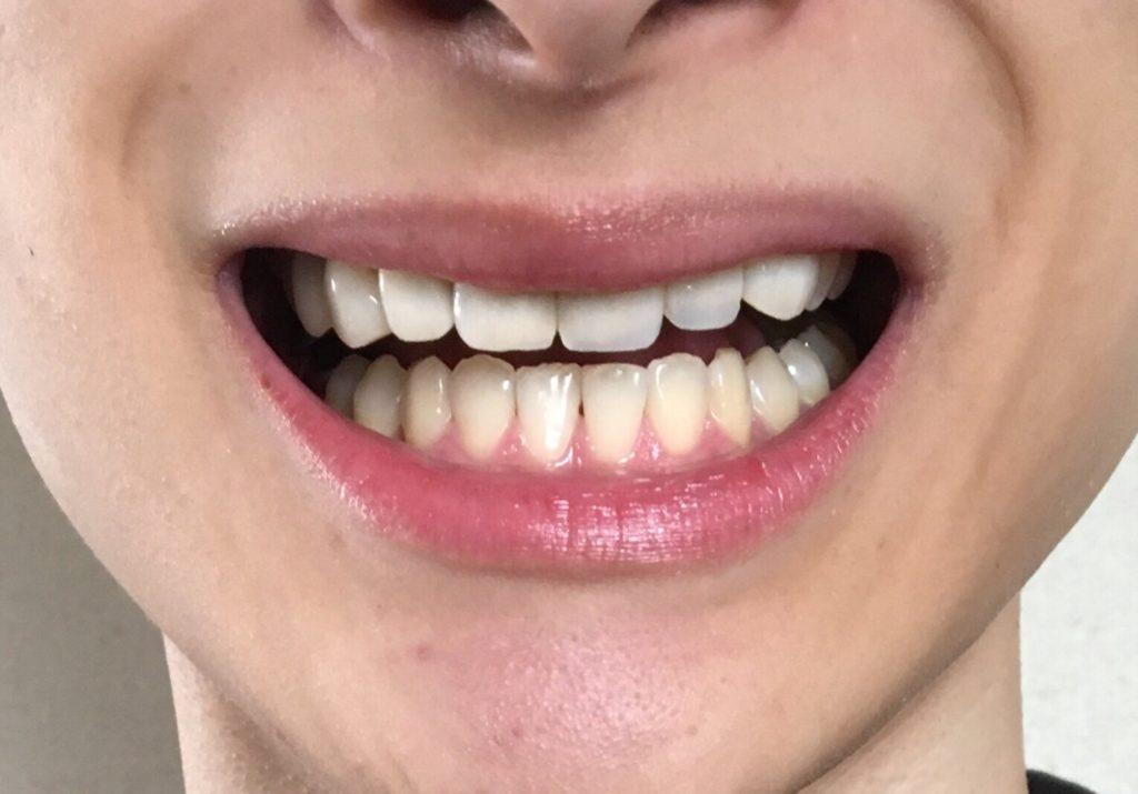 使用後 コルゲート オプティックホワイト「ハイインパクト」 歯磨き粉 ホワイトニング